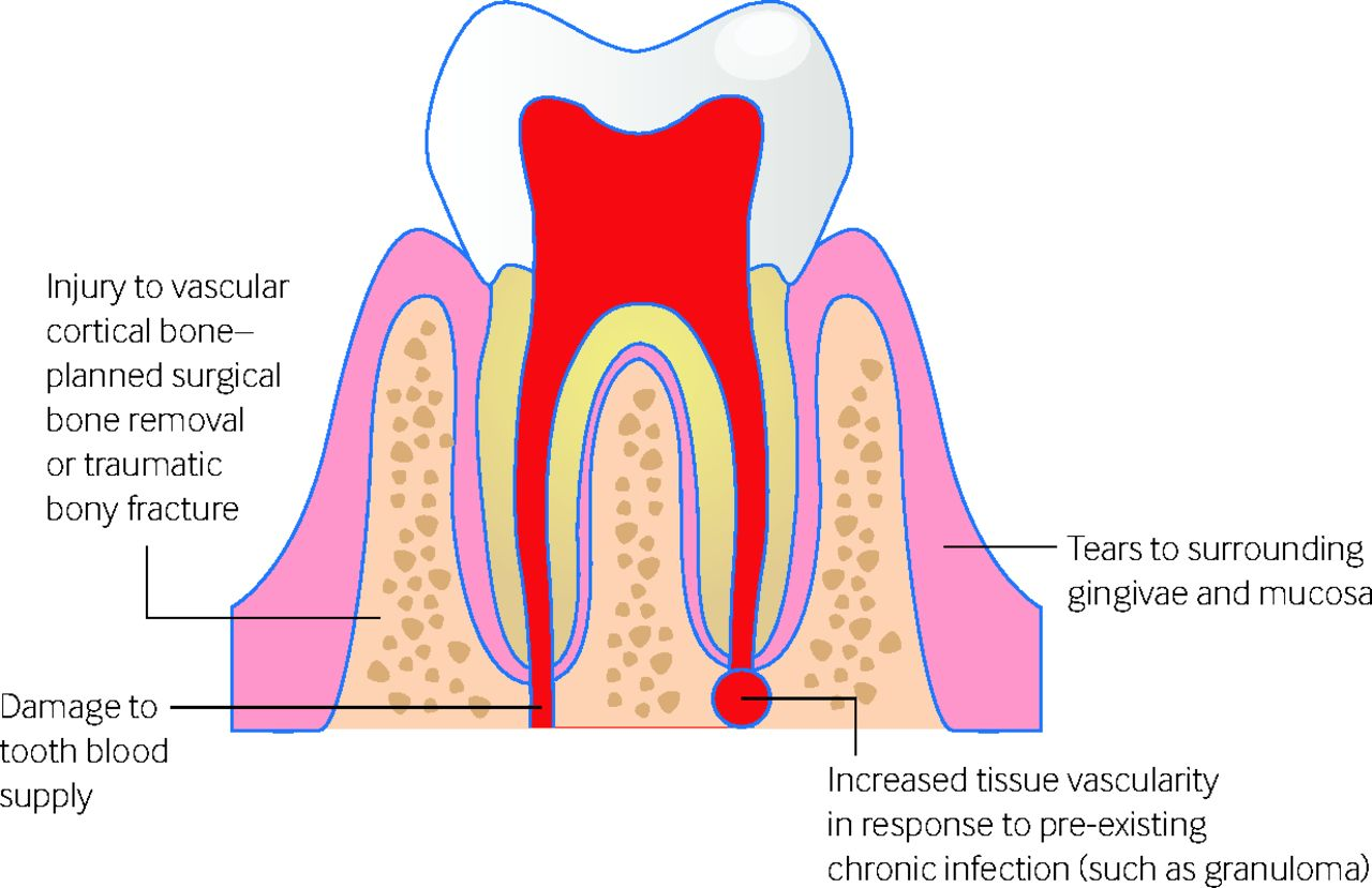 A bleeding socket after tooth extraction | The BMJ