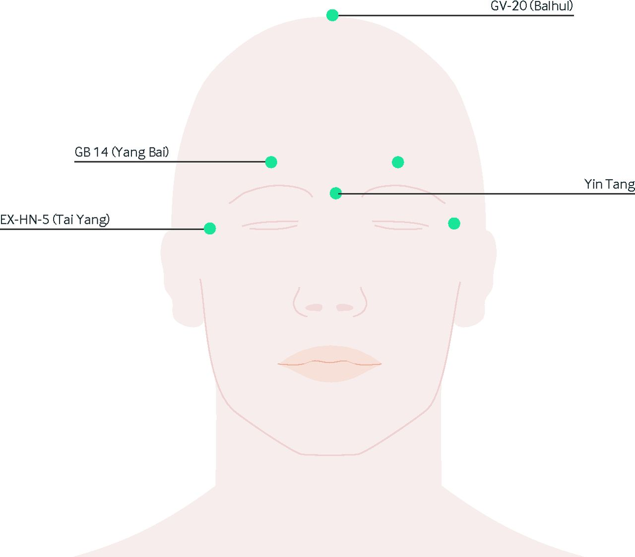 Complementary and integrative medicine in the management of fig 1 common acupuncture points on the face and head where needles are inserted in combinations to treat various types of headaches pooptronica Image collections