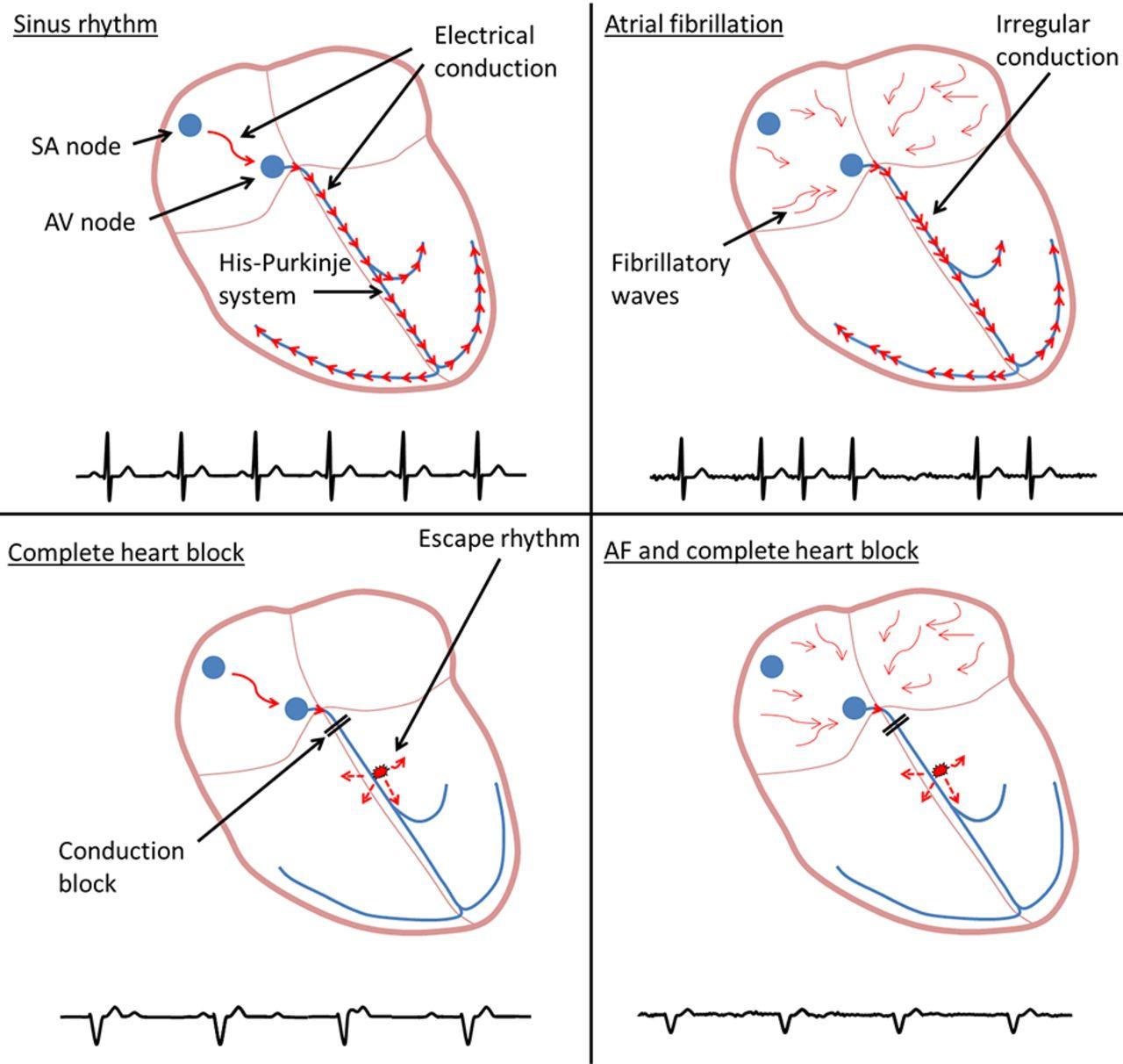 Heart rhythm conundrum | The BMJ