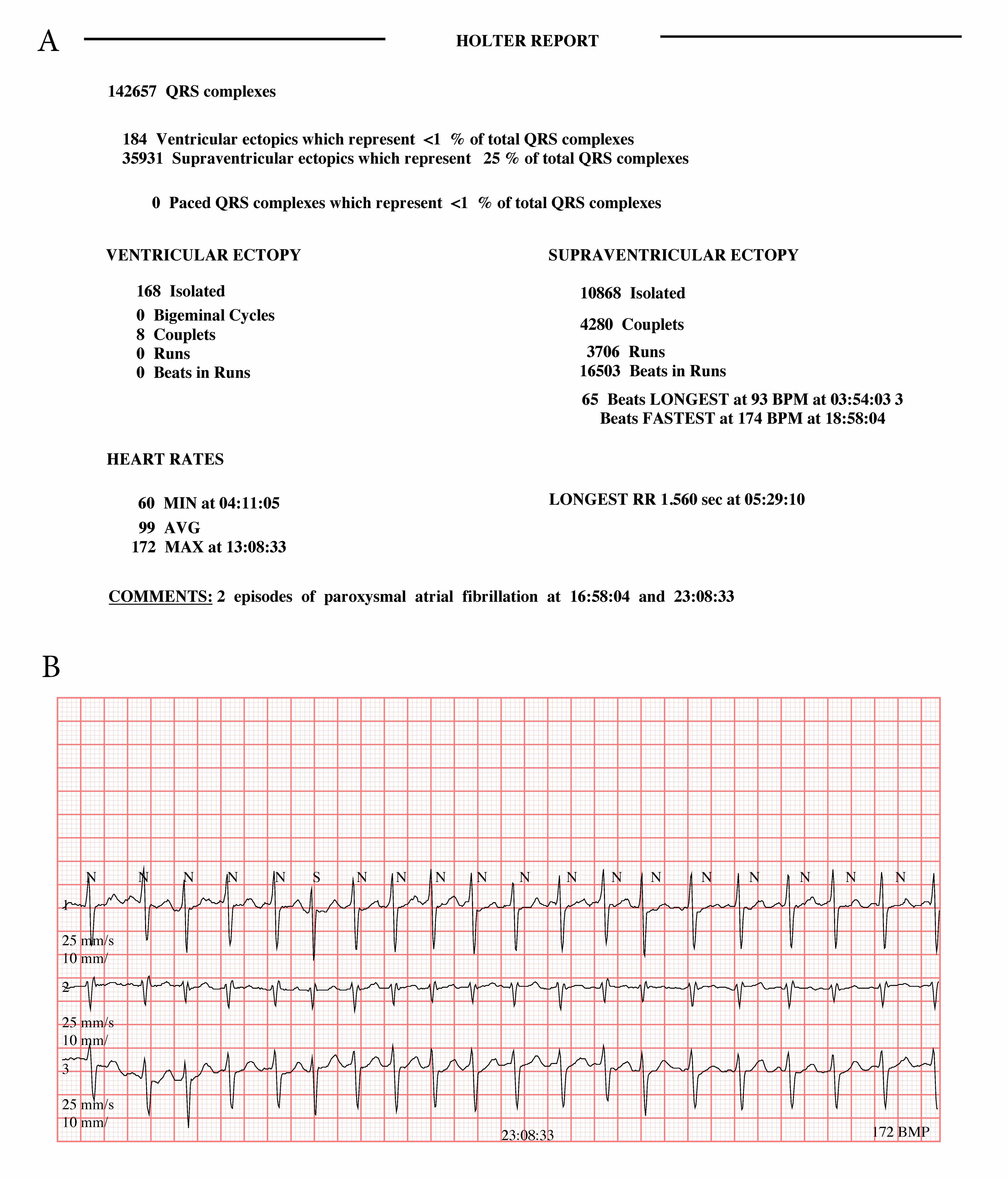 Investigating palpitations: the role of Holter monitoring