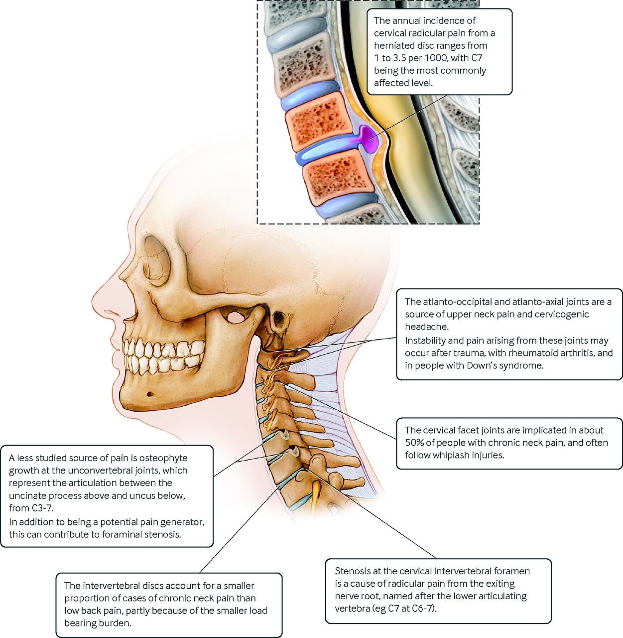 Advances In The Diagnosis And Management Of Neck Pain The Bmj