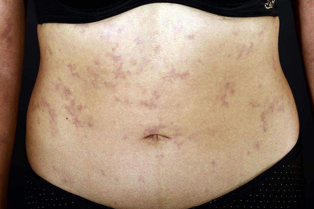 Neuropathy and a rash | The BMJ