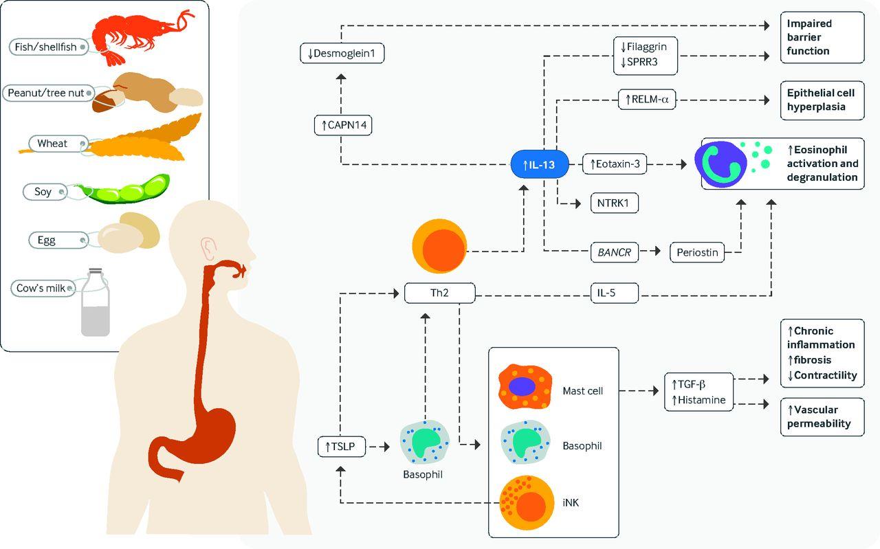 Eosinophilic Esophagitis Update On Management And