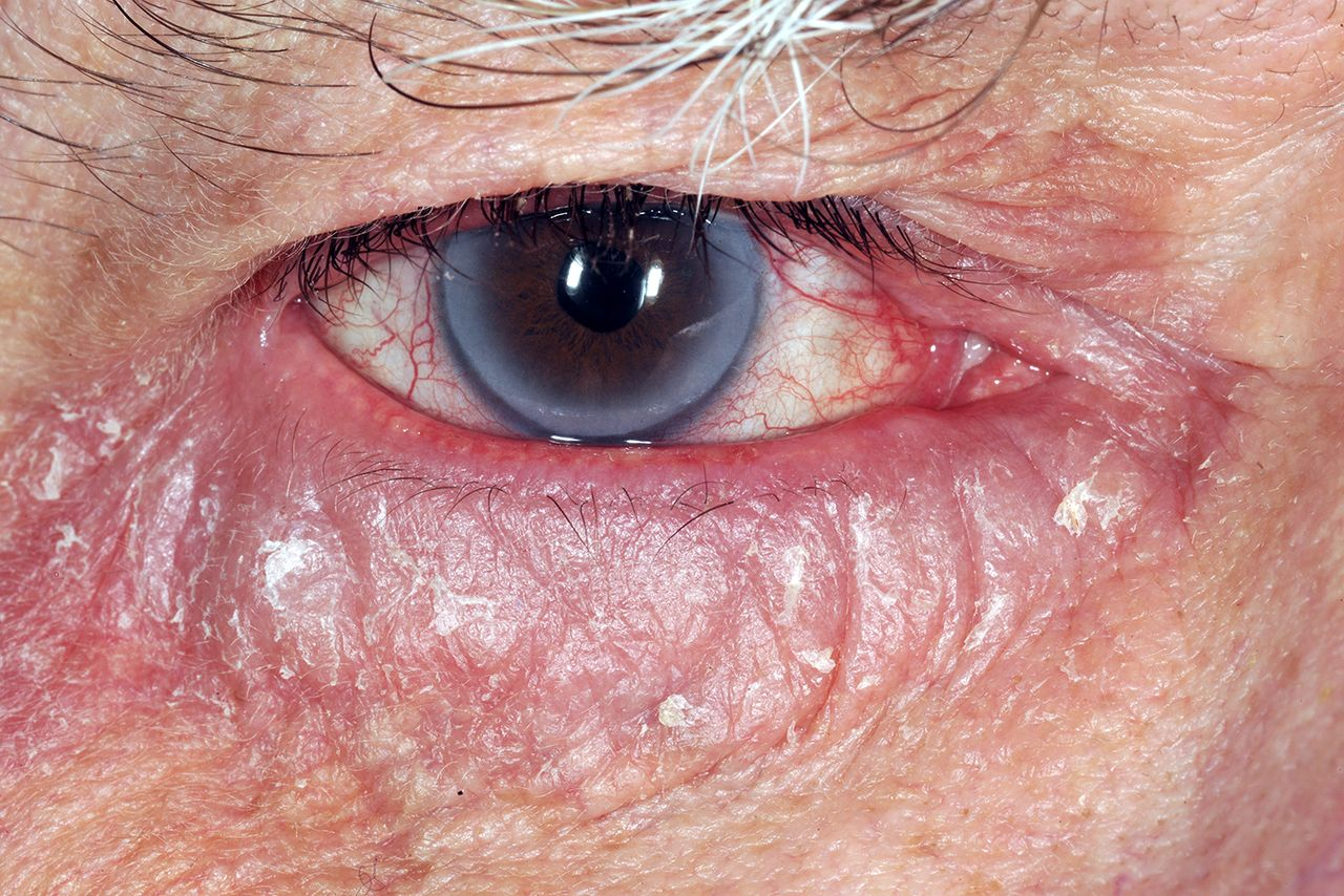 History of the disease according to ophthalmology. Eye diseases