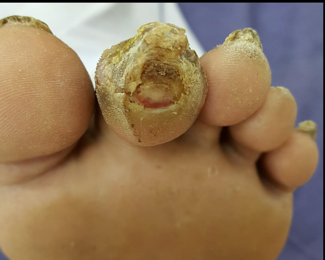 Diabetic Foot The Bmj