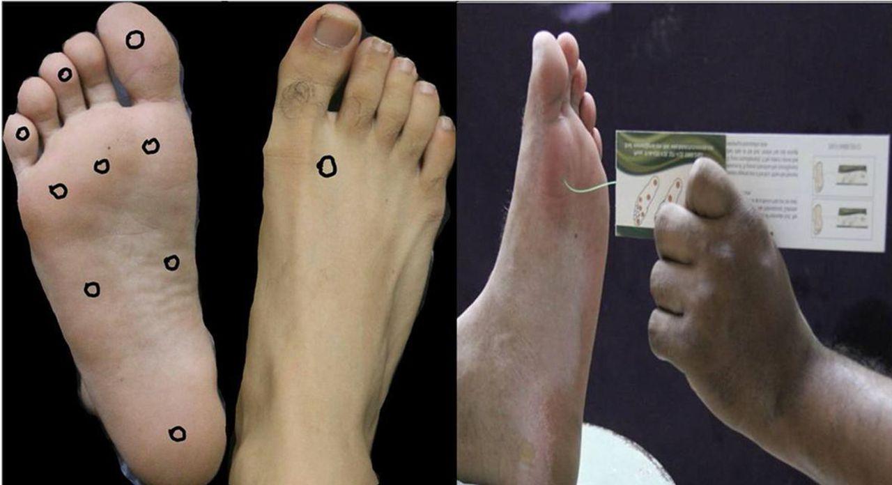Lack of bottom foot