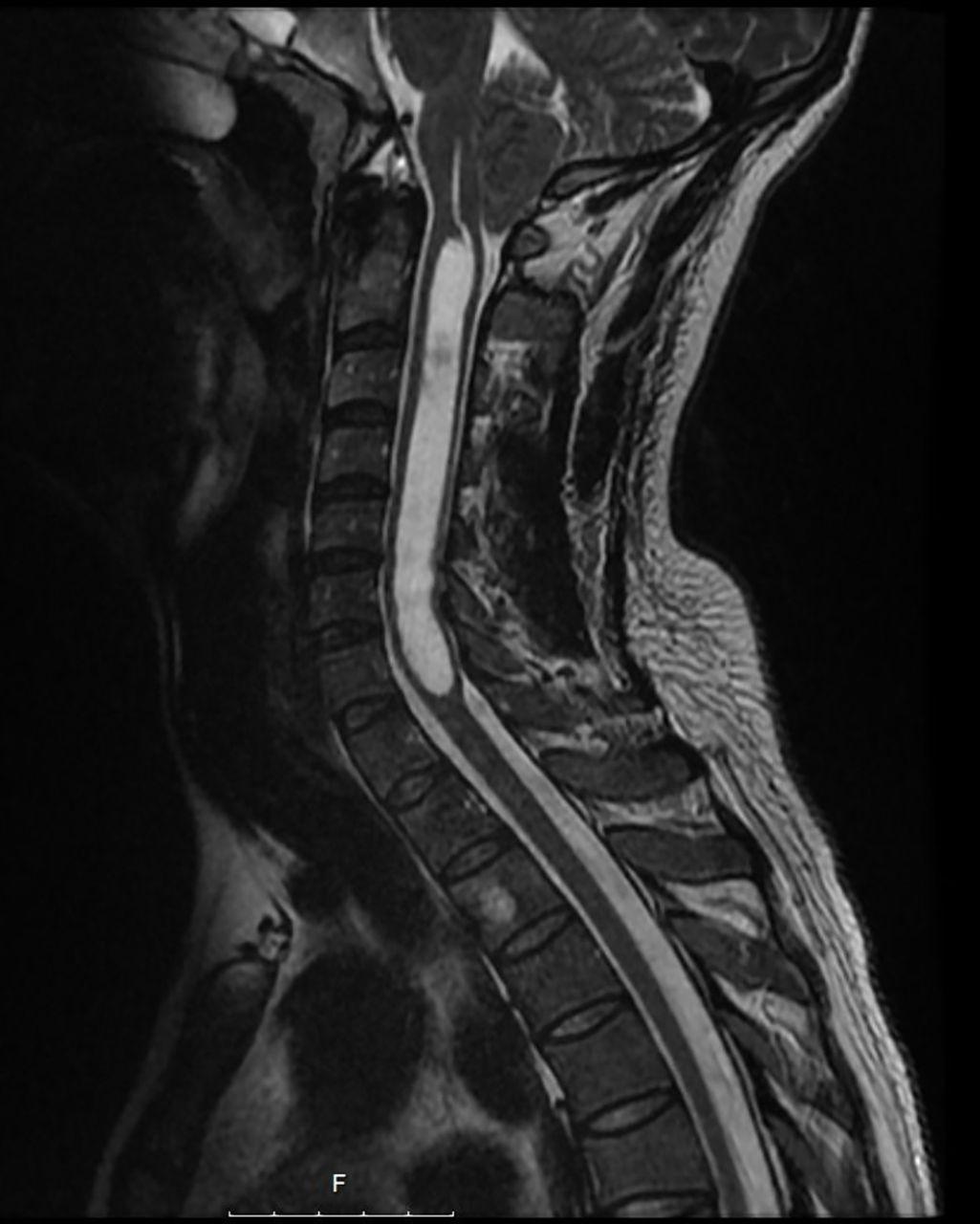 A man with paraesthesia, headache, and vertigo | The BMJ