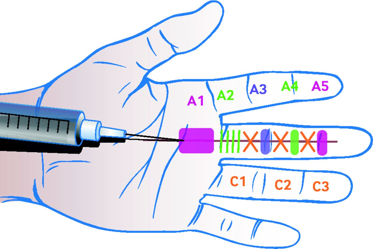 Acquired triggering of the fingers and thumb in adults | The BMJ
