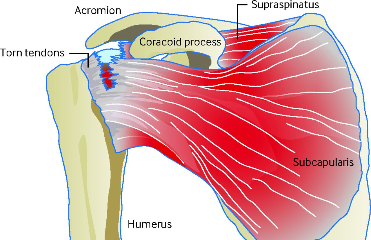 Acute rotator cuff tears | The BMJ