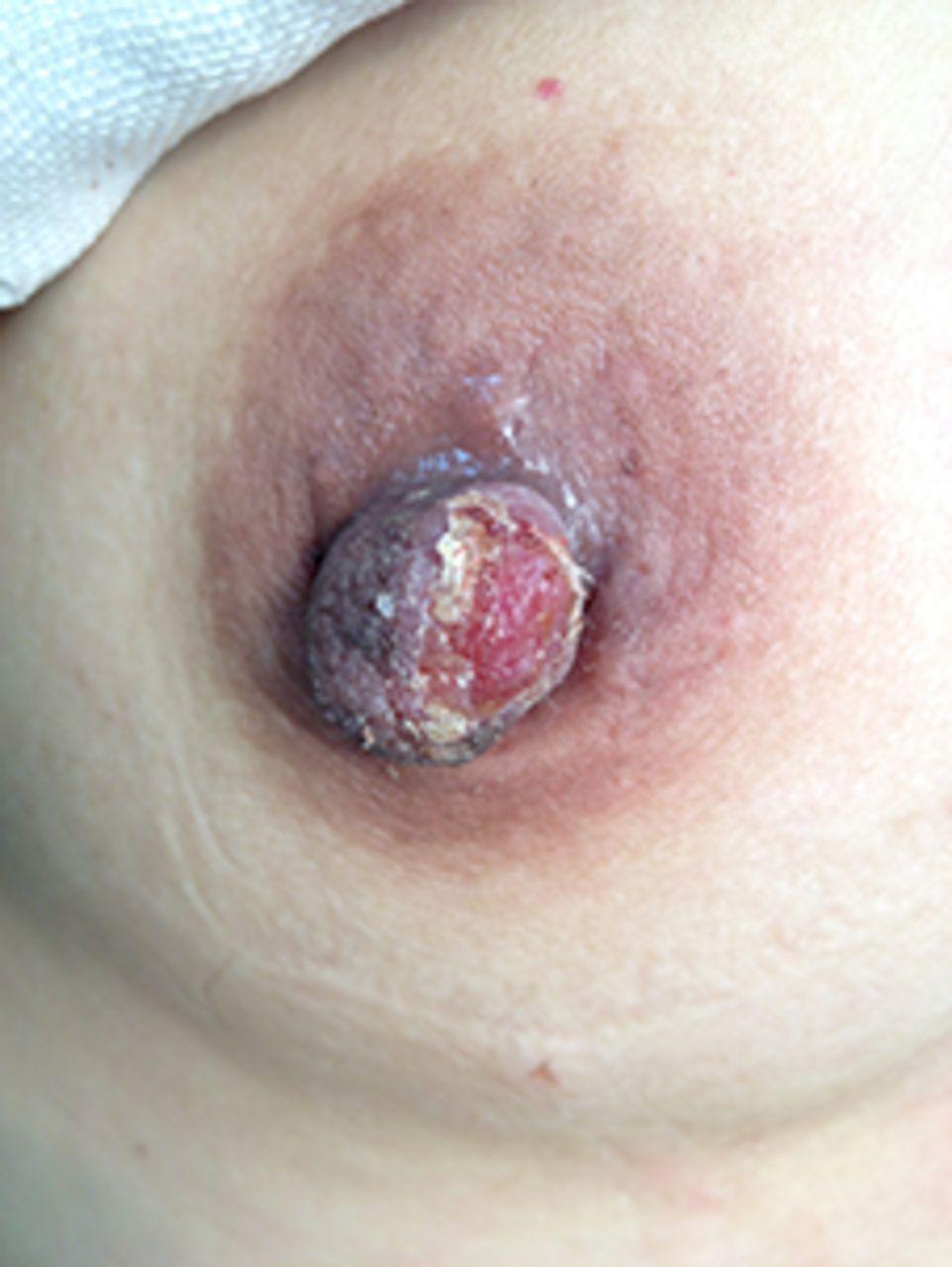 Nipple on male bump white Painful Lump