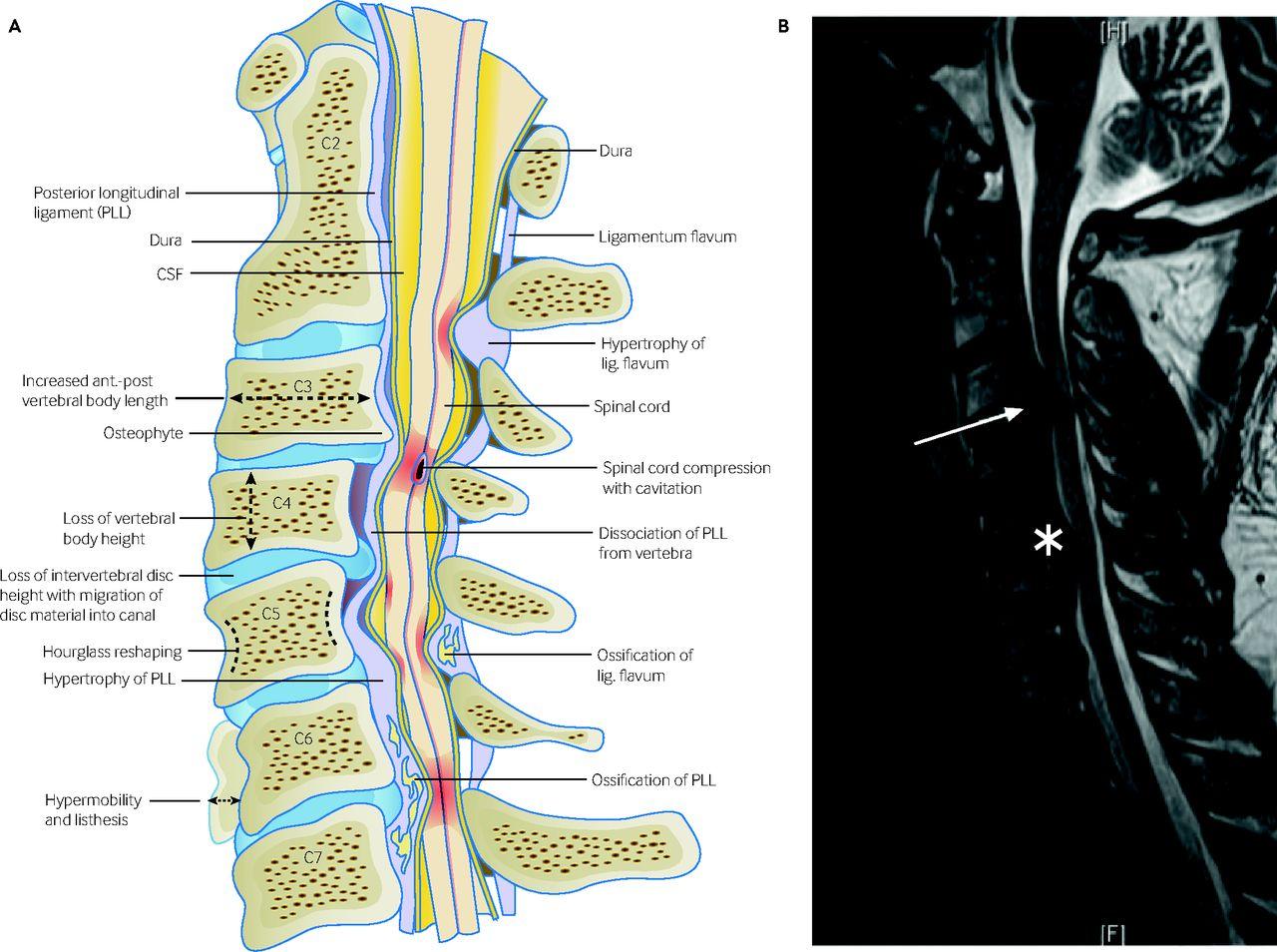 Degenerative cervical myelopathy | The BMJ