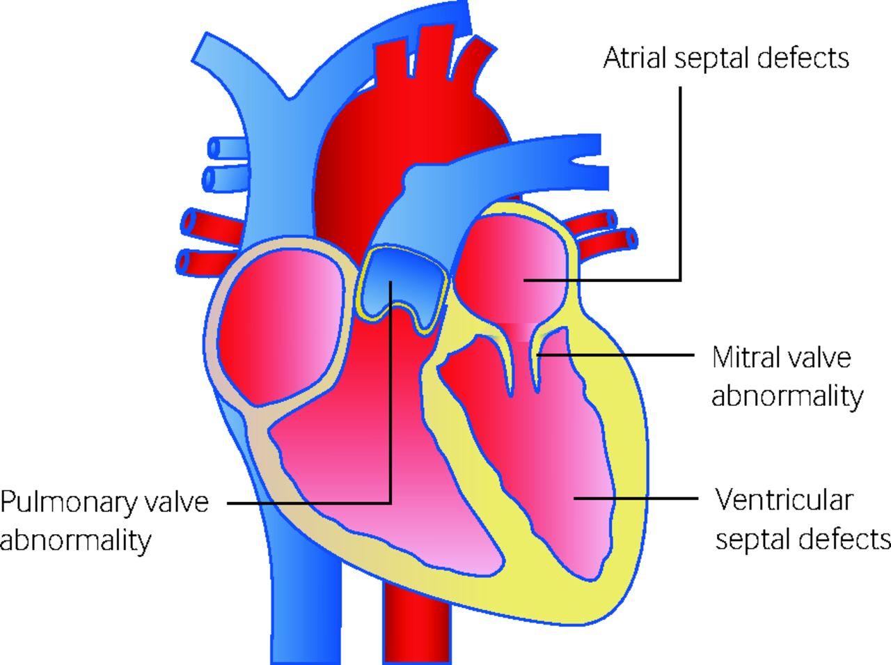 Pregnancy In Women With Congenital Heart Disease The Bmj