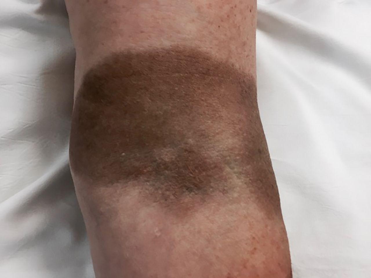 Postpartum Anemia Treated With I V Iron Sucrose Venofer Total Dose 450