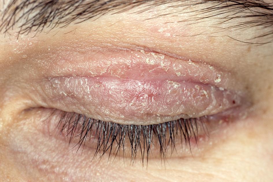 Periocular rash | The BMJ
