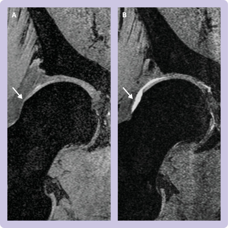 Arthroscopic hip surgery compared with physiotherapy and