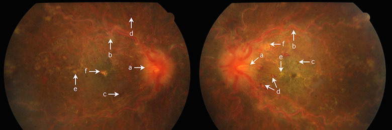 Bilateral central retinal vein occlusion as the first
