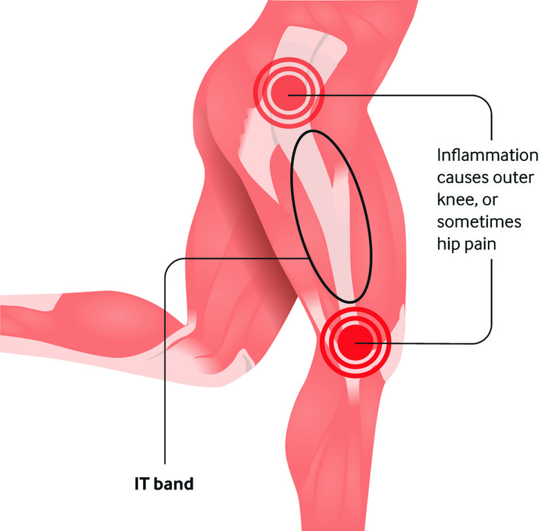 Iliotibial Band Syndrome (ITBs)