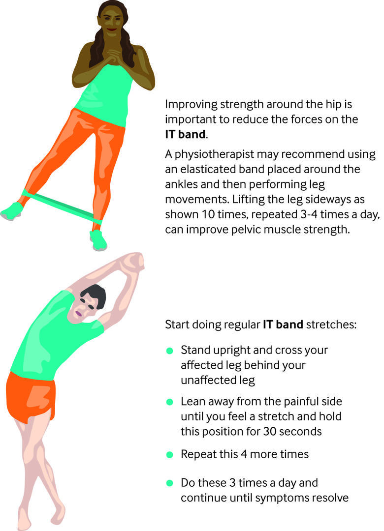 Iliotibial band syndrome | The BMJ