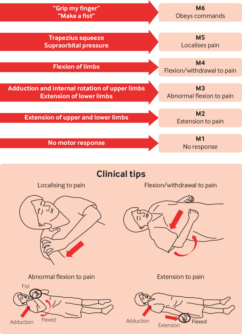 Glasgow coma scale explained | The BMJ