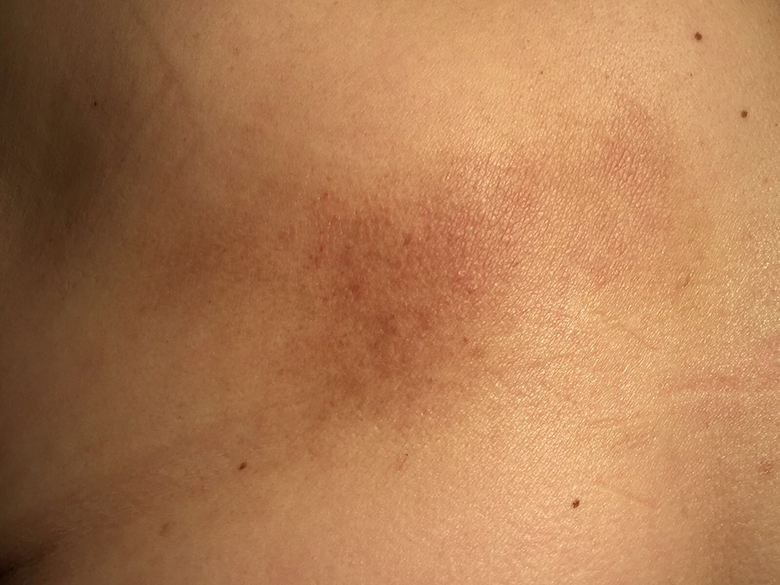 A woman with an itchy hyperpigmentation on her back | The BMJ