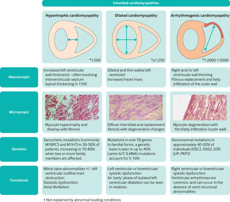 Inherited cardiomyopathies | The BMJ