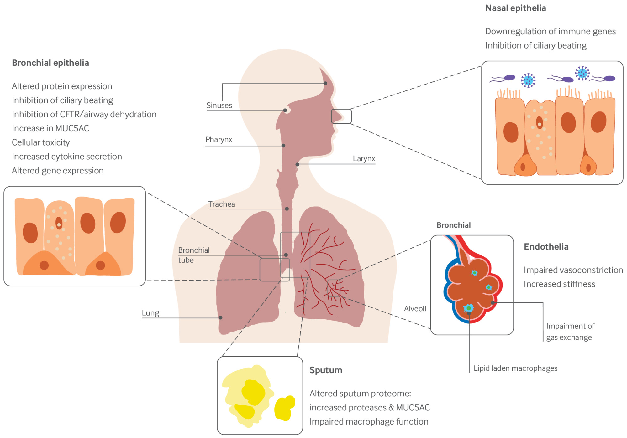 What are the respiratory effects of e-cigarettes? | The BMJ