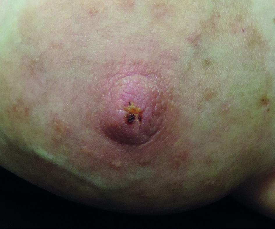 White lump on nipple