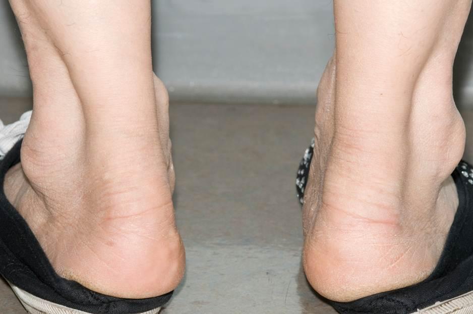 「achilles' tendon」の画像検索結果