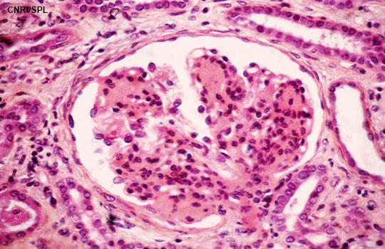 Chronic Kidney Disease In Elderly People Disease Or Disease Label