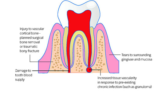 A Bleeding Socket After Tooth Extraction The Bmj