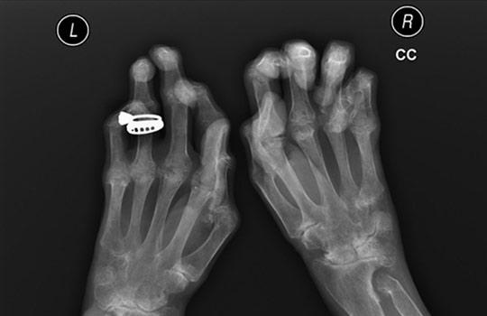 zárt térd sérülések akut fájdalom a jobb kéz ízületeiben