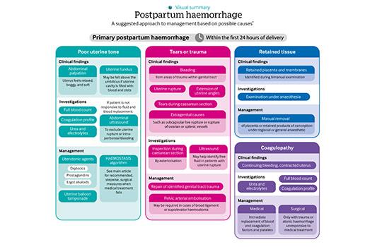 Postpartum Hemorrhage Concept Map.Diagnosis And Management Of Postpartum Haemorrhage The Bmj