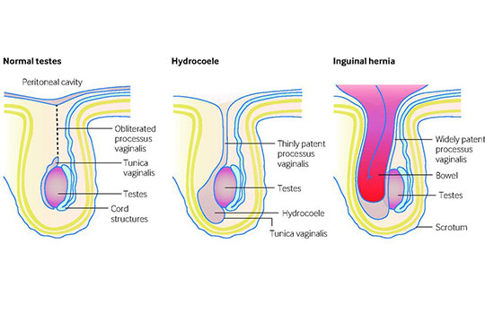 Management of paediatric hernia | The BMJ