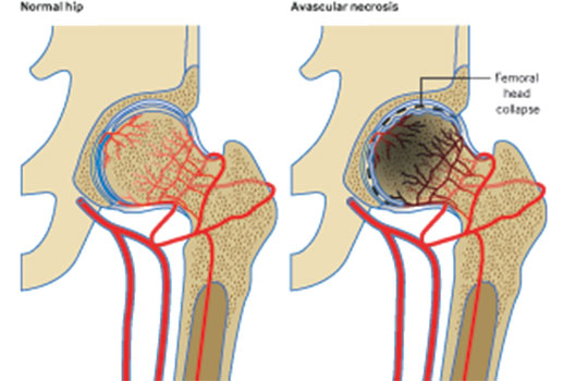 Avascular necrosis of the hip | The BMJ