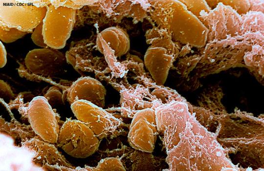 Containing pneumonic plague