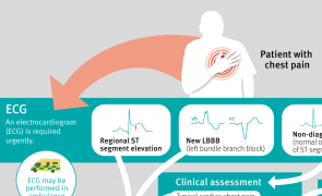 Infographic: Acute coronary syndrome: