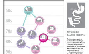 Thumbnail of bariatric surgery family tree interactive graphic