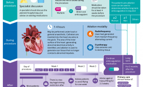 Ablation therapy in atrial fibrillation