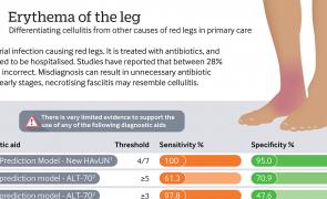 Infographic - Erythema of the leg