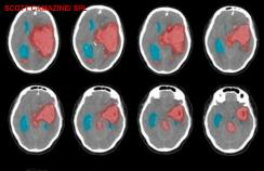CT scan of intracranial haemorrhage