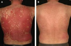 psoriasis in adults