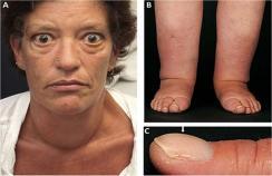 Extrathyroidal manifestations of Graves' disease