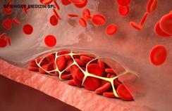 thrombosed blood vessel - artwork