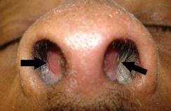 A nasal septal haematoma