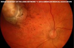 Fundus photograph of a 1 month old boy
