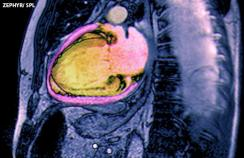 Coloured MRI scan of a patient after a myocardial infarction