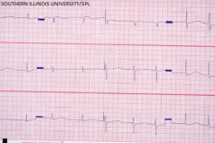 long QT syndrome ECG