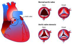 Anatomy and function of the aortic valve