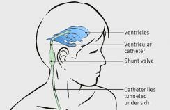 Diagram of ventriculoperitoneal shunt