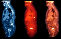 PET scan showing prostate cancer